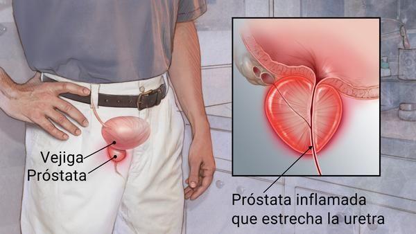 Prostatit reiki)