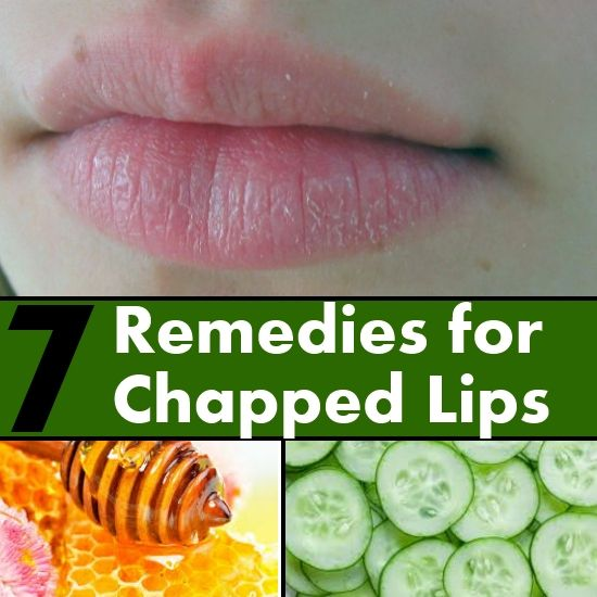 10 Best Remedies For Dry Chapped Lips