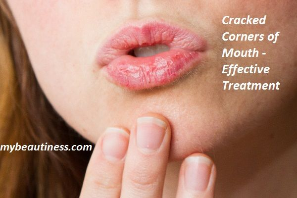 Contents What Causes Cracks In Corner Of Mouth Cracked Corners Of