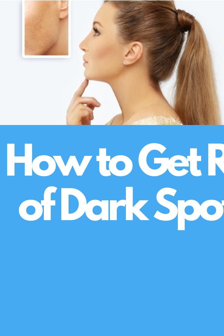 How to Get Rid of Dark Spots  Beauty Tips  Pinterest  Beauty