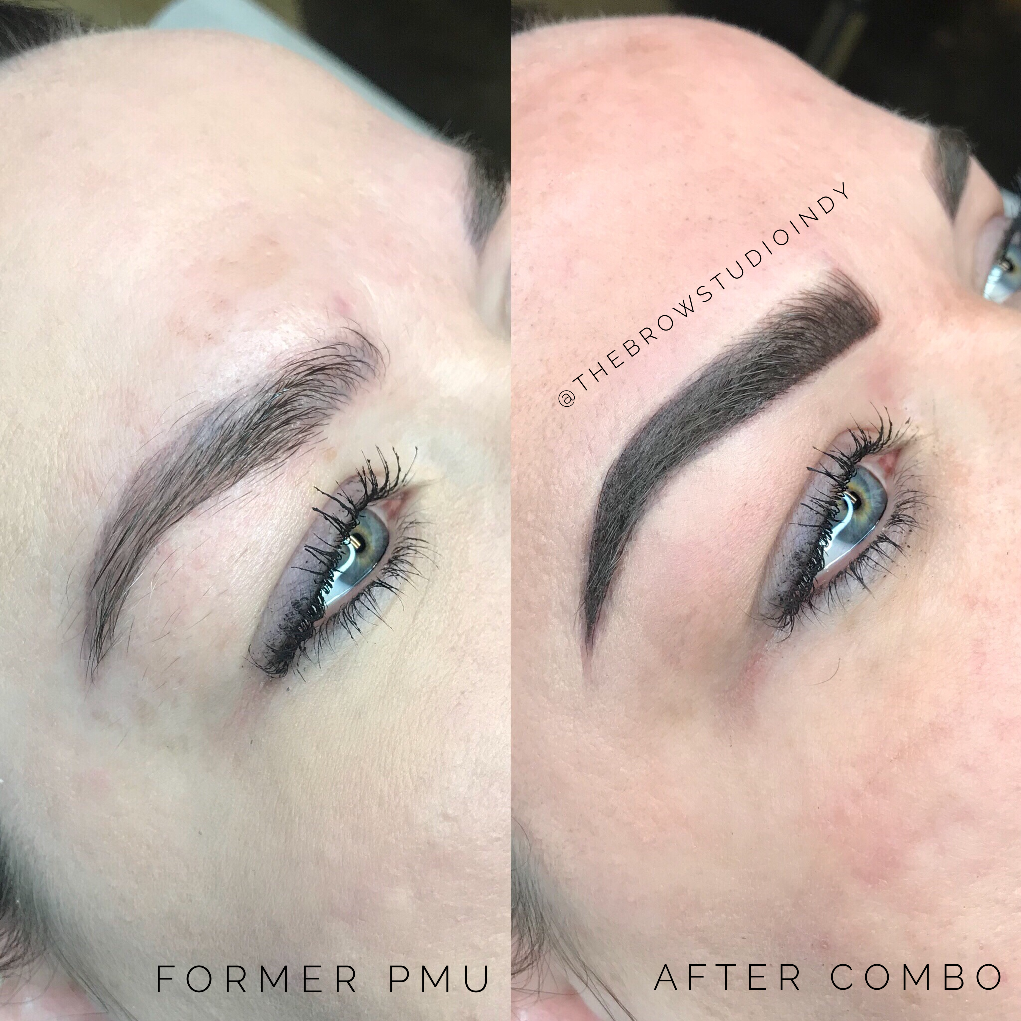Before and After Combination Brow at