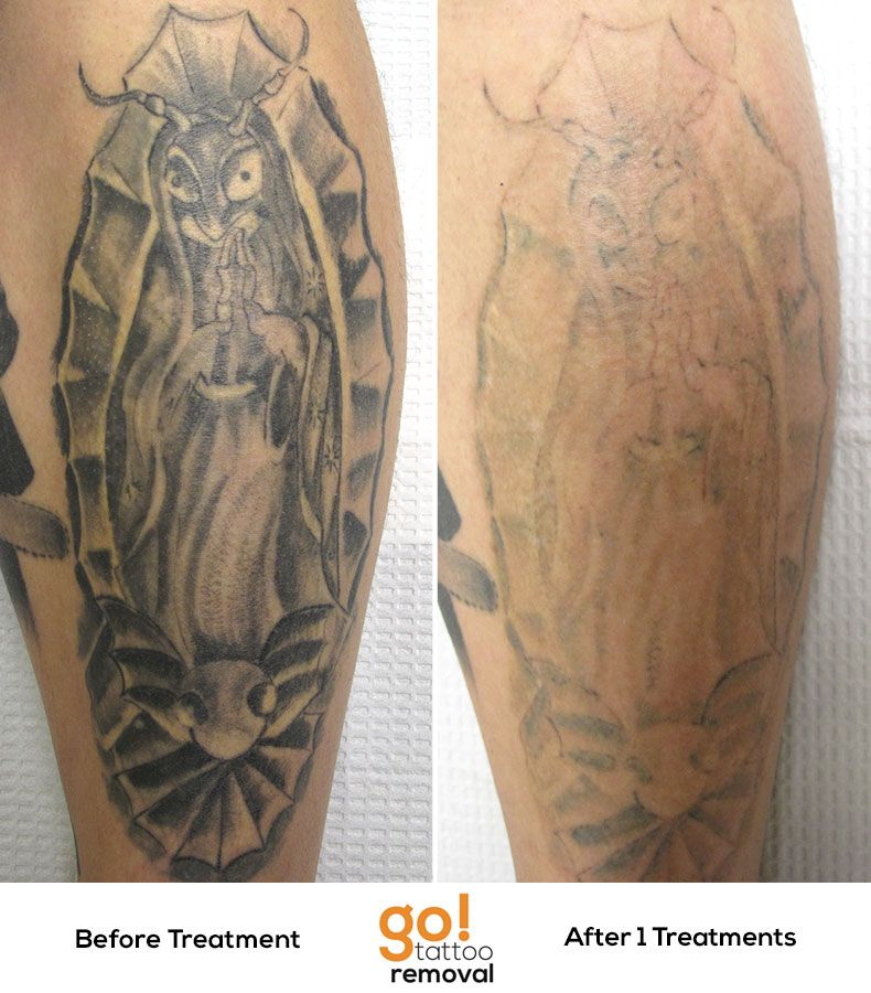 Simply amazing results after 1 laser tattoo removal for New tattoo removal