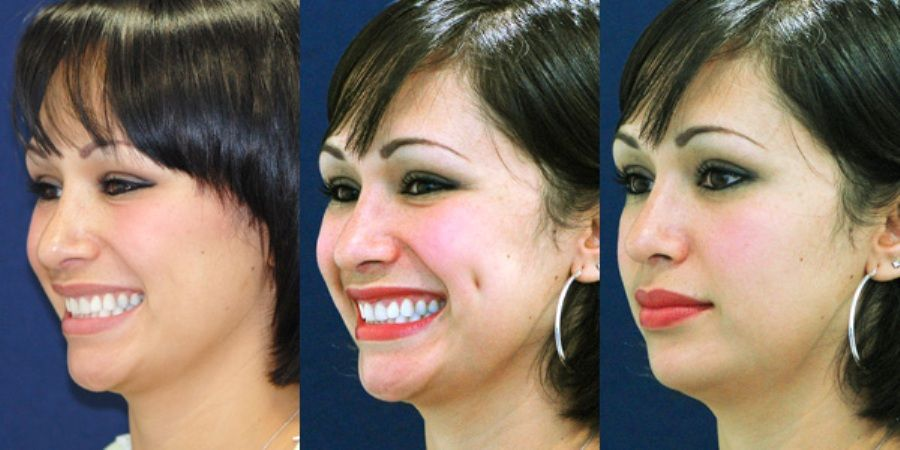 Sushma Plastic And Cosmetic Surgery Clinic Provides Best