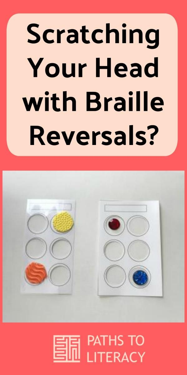 Wondering What To Do To Help Students With Braille Reversals? These Ideas  Can Help!