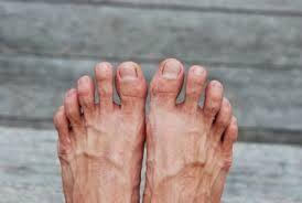 swollen veins in feet