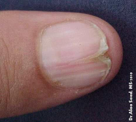 Cosmetology nail diseases and disorders