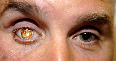 U.S. Marine Nicholas Popaditch suffered an eye injury in Fallujah, Iraq, and lost his right eye. His replacement prosthetic eye has something the original didn't: the Marine Corps emblem.