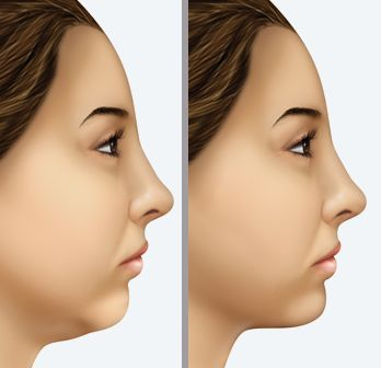 A Way To Rejuvenate And Tighten Your Mid-Face And Cheek Zone With