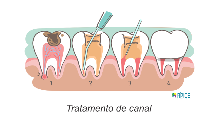 Endodontia Tratamento De Canal Cl 237 Nica Odontol 243 Gica 193 Pice
