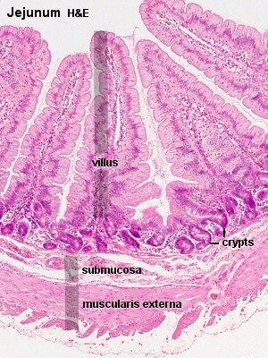 Histology - Small Intestine - Jejunum | Digestive system ...