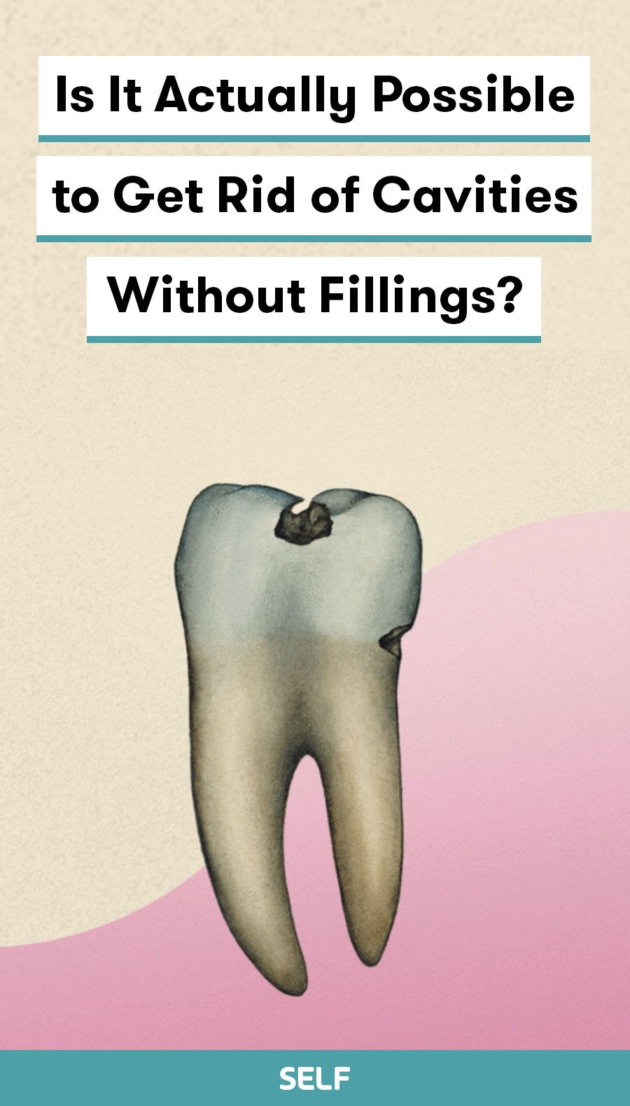 Is It Actually Possible To Get Rid Of Cavities Without Fillings Emergency Dentist Cavities Cavity Filling