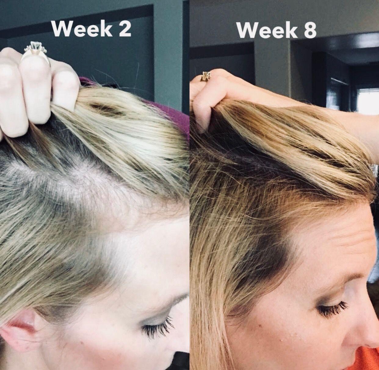 Pin on Hair Restoration