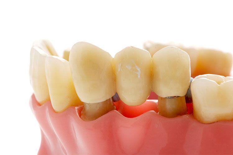 Rambunctious Dental Surgery Art oralhealthcaretips