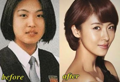 Top 10 Famous And Beautiful Korean Actresses Before And After 2016
