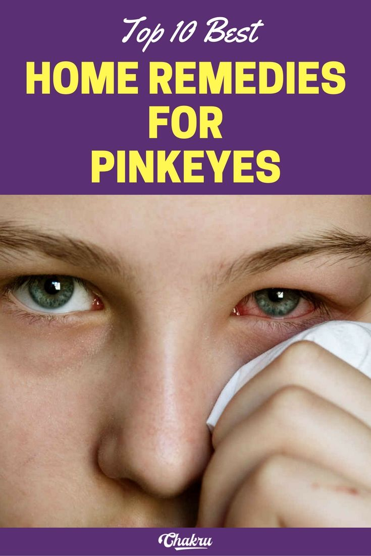 Conjunctivitis. Is it possible to cure at home