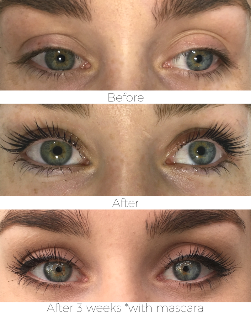 90e01410f63 We have found our new obsession. Lvl Lashes, Eyelashes, Eyebrows, Eyelash  Treatment
