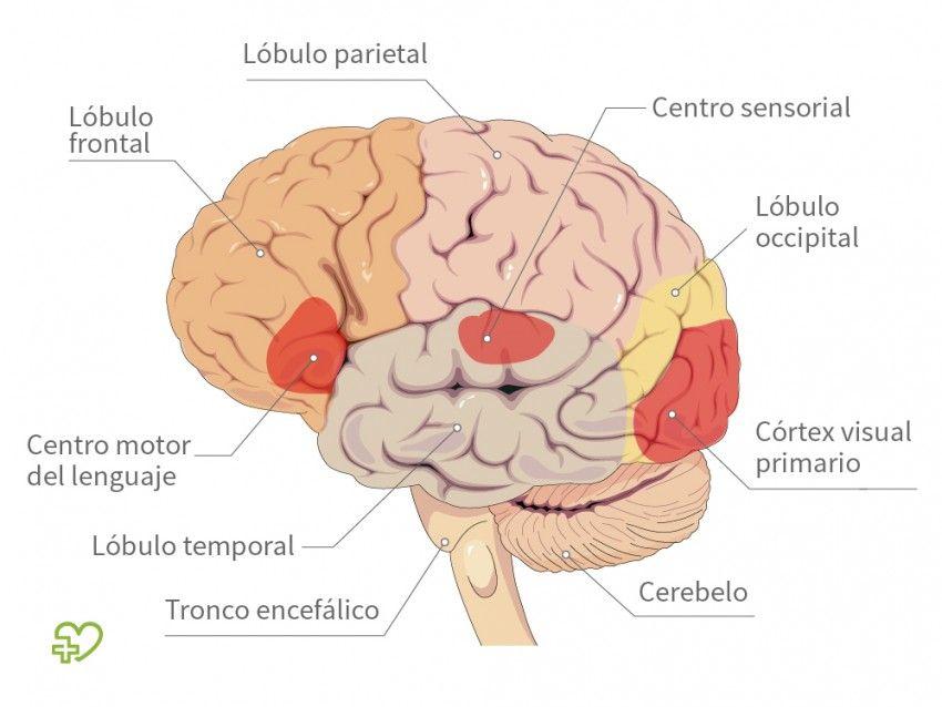 Anatomia del #cerebro - Estructura del cerebro - Onmeda.es ...
