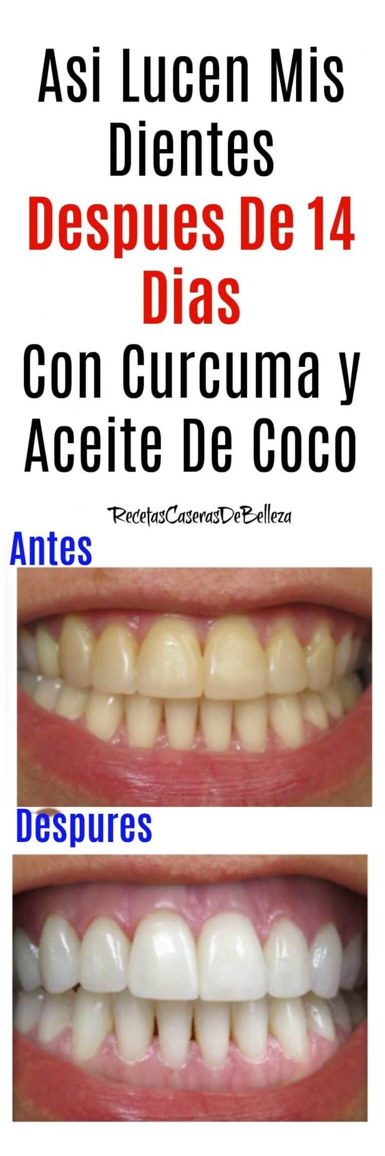 Cómo Conseguir Dientes Más Blancos En Casa Dientes Mas Blancos Blanqueamiento Dental Productos De Higiene Bucal