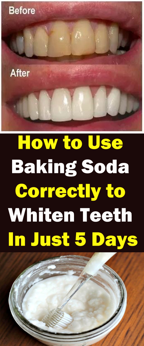 How to Use Baking Soda Correctly to Whiten Your Teeth In Just 5 Days? Homemade teeth whitening is easy. A Dentist Friend Told Me How To Eliminate Tartar, Gingivitis And Whiten My Teeth In 4 Steps With This Homemade Recipe - Natural Remedy. whiten your teeth at home in 3 minutes. Baking Soda Recipes to Obtain White and Strong Teeth Rush to your kitchen room and you'll find a bunch of natural ingredients. Pick baking soda and lemon from it. #oralhealth #dental #dentalhygiene #teeth #oral #howtow #howtowhitenyourteeth