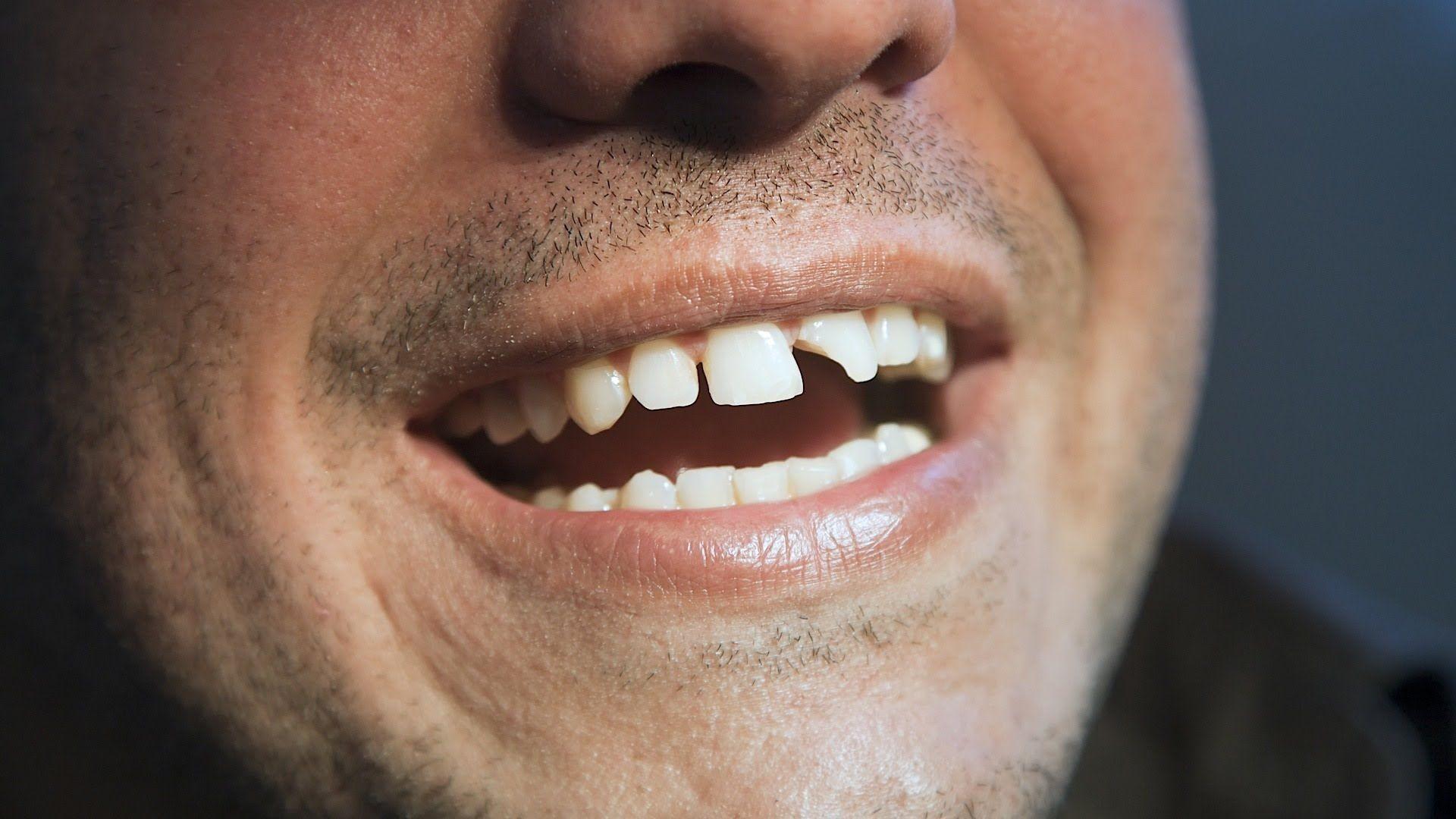 broken tooth Broken tooth, Dental bonding, Teeth care
