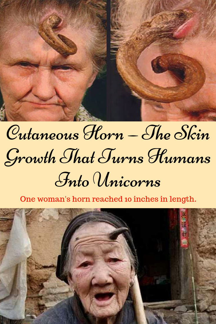 Cutaneous Horn — The Skin Growth That Turns Humans Into