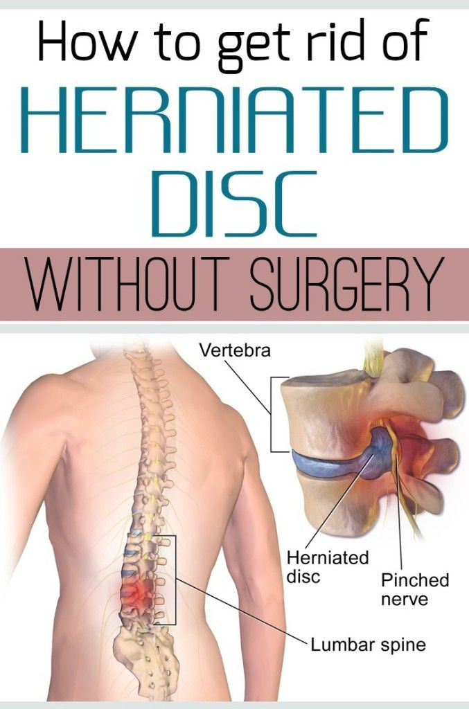 How To Get Rid Of Herniated Disc Without Surgery Herniated Disc Herniated Herniated Disc Exercise