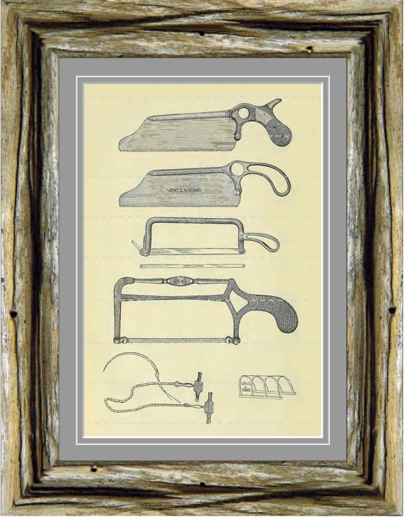 Digital 5x7 Print Vintage Surgical Medical Tools Instruments Saws