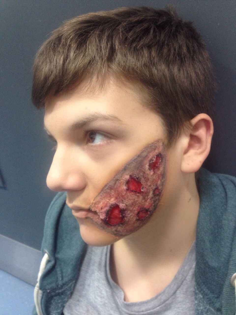 Iron burn to the face, sfx. Model-Brandon Barns. MUA-Frances Luck ...