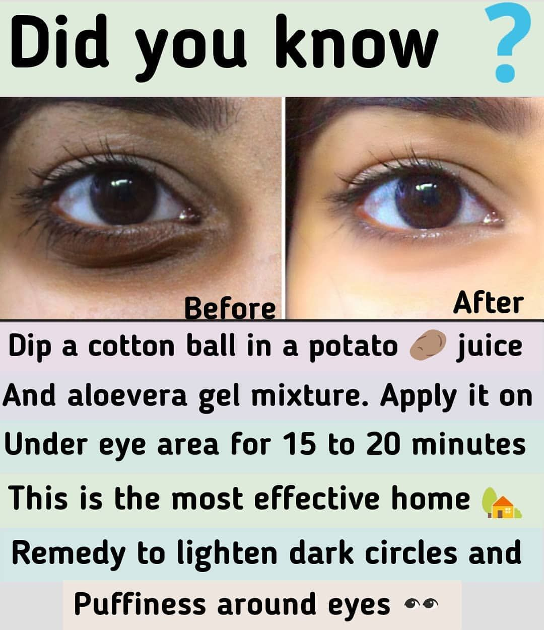 How To Get Rid Of Dark Circles Permanently Laser