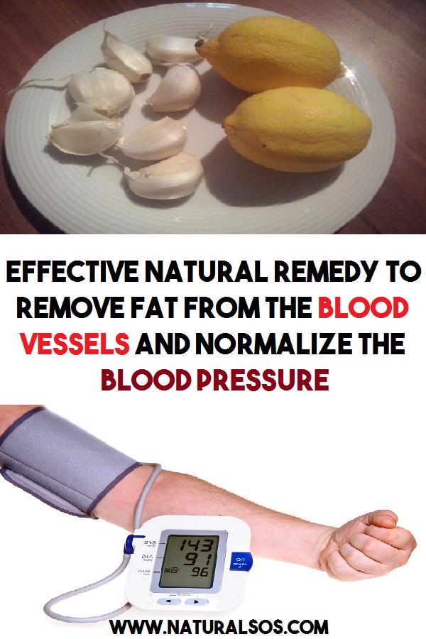 44c3ebd555eb9268ed8b2af12ab7748f - How To Get Rid Of Fat In Blood Vessels