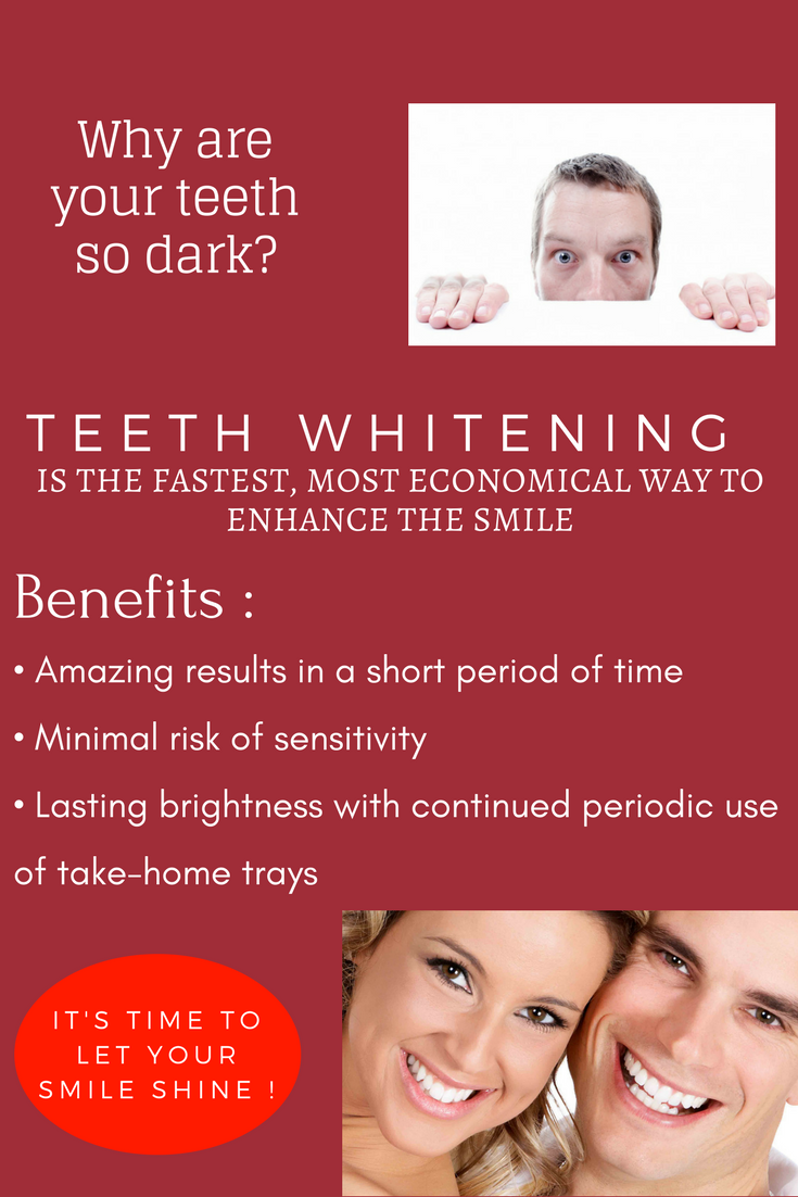 Professional Teeth Whitening Provides Longer Results And More