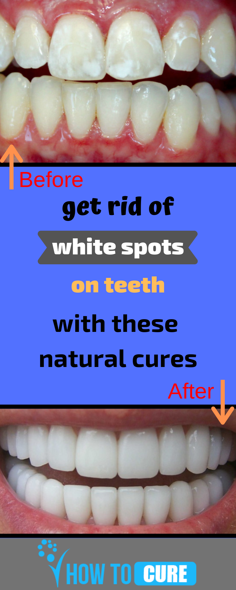 44c809ca167f1c619eb38a2e1cca1a25 - How To Get Rid Of White Spot Lesions On Teeth