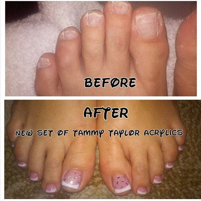 Any Girl Can Have Beautiful Feet Wearing Tammy Taylor Love These Pink And White Toenails By Angelagilmanwilkey At En Toe Nails Acrylic Toes Pretty Toe Nails