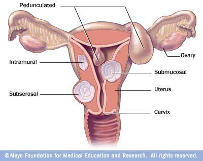 Fibroid locations | Student Midwife Resources | Natural