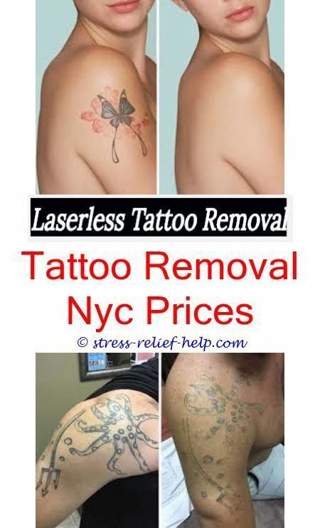 How do permanent tattoos get removed.How to remove temp tattoos.Is ...