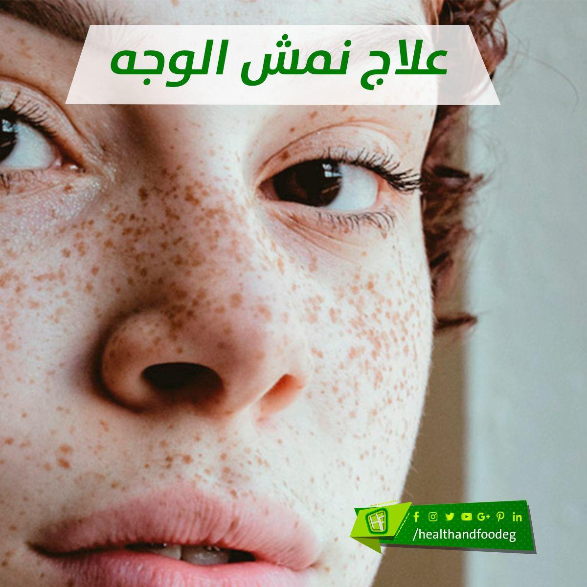 علاج نمش الوجه Movie Posters Poster Movies