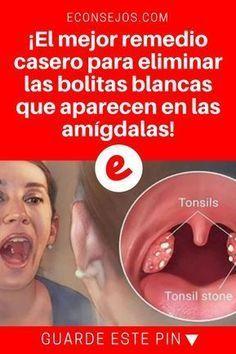 cosas blancas en la garganta sin dolor