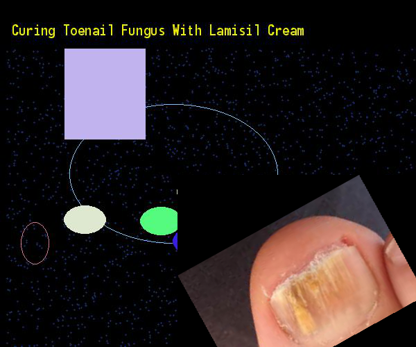 Curing Toenail Fungus With Lamisil Cream Nail Remedy You Have Nothing To Lose