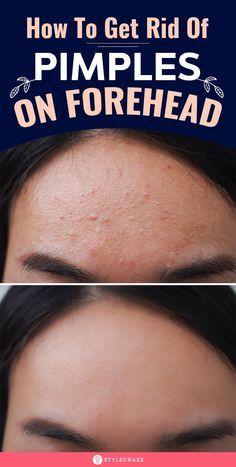 How To Get Rid Of Pimples On Forehead