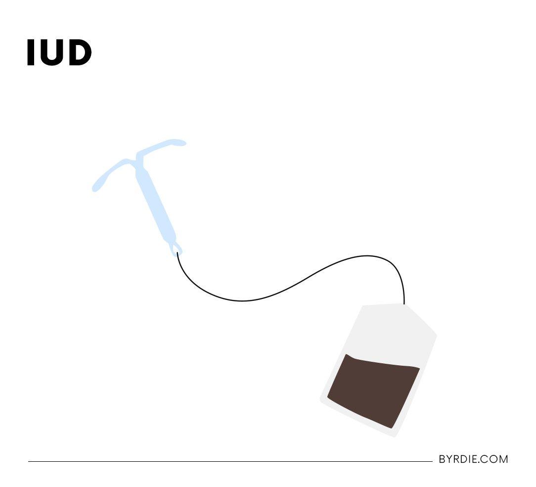 iud types