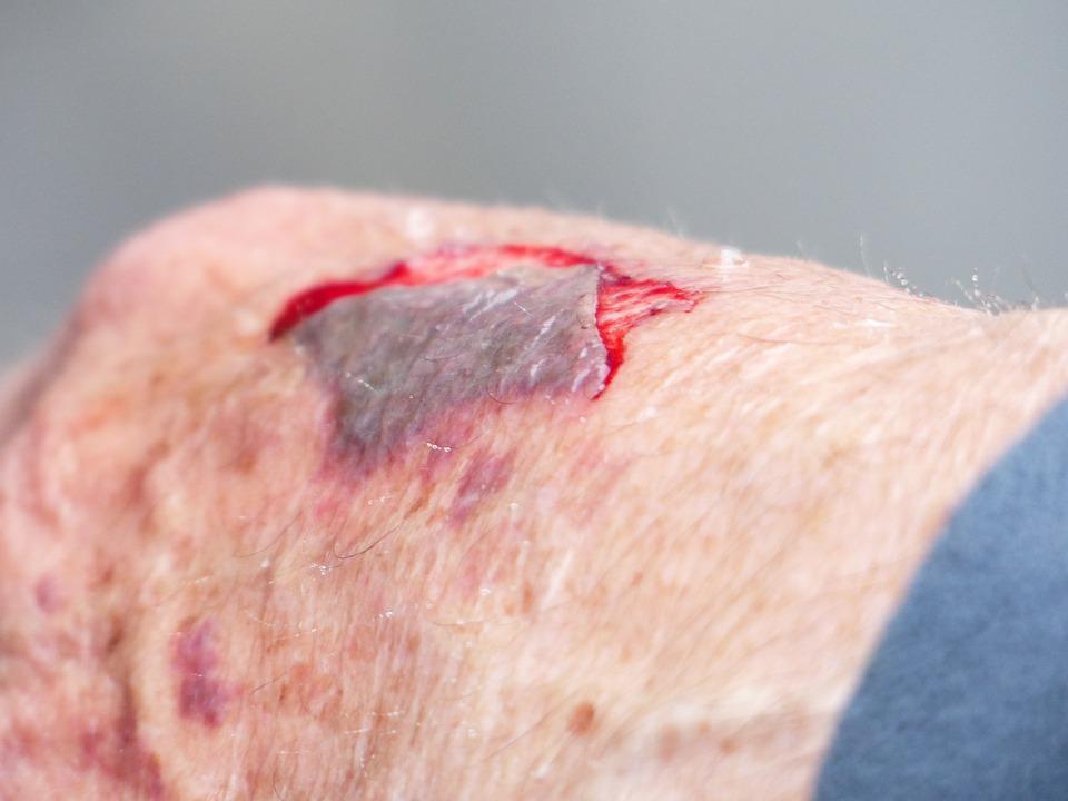 Pin On Forensic Pathology Blunt Force Trauma