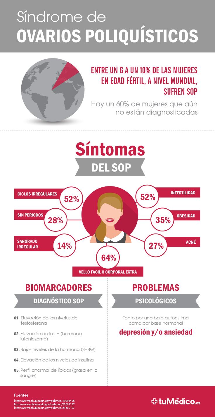 Síndrome de Ovarios Poliquísticos #SOP   anatomia   Pinterest ...