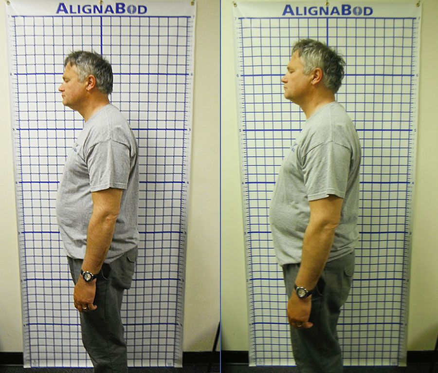 Before and after photos chiropractic care improve posture