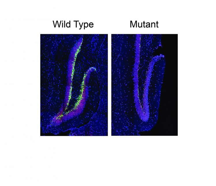 Drug Treats Inherited Form of Intellectual Disability in Mice - disability form