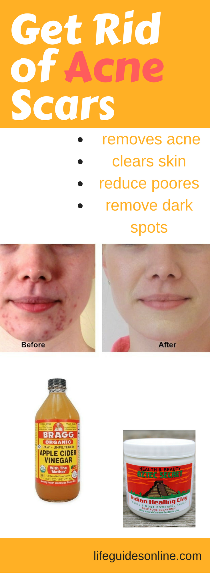 How to remove acne scars with apple cider vinegar How to remove acne scars with apple cider vinegar new pics