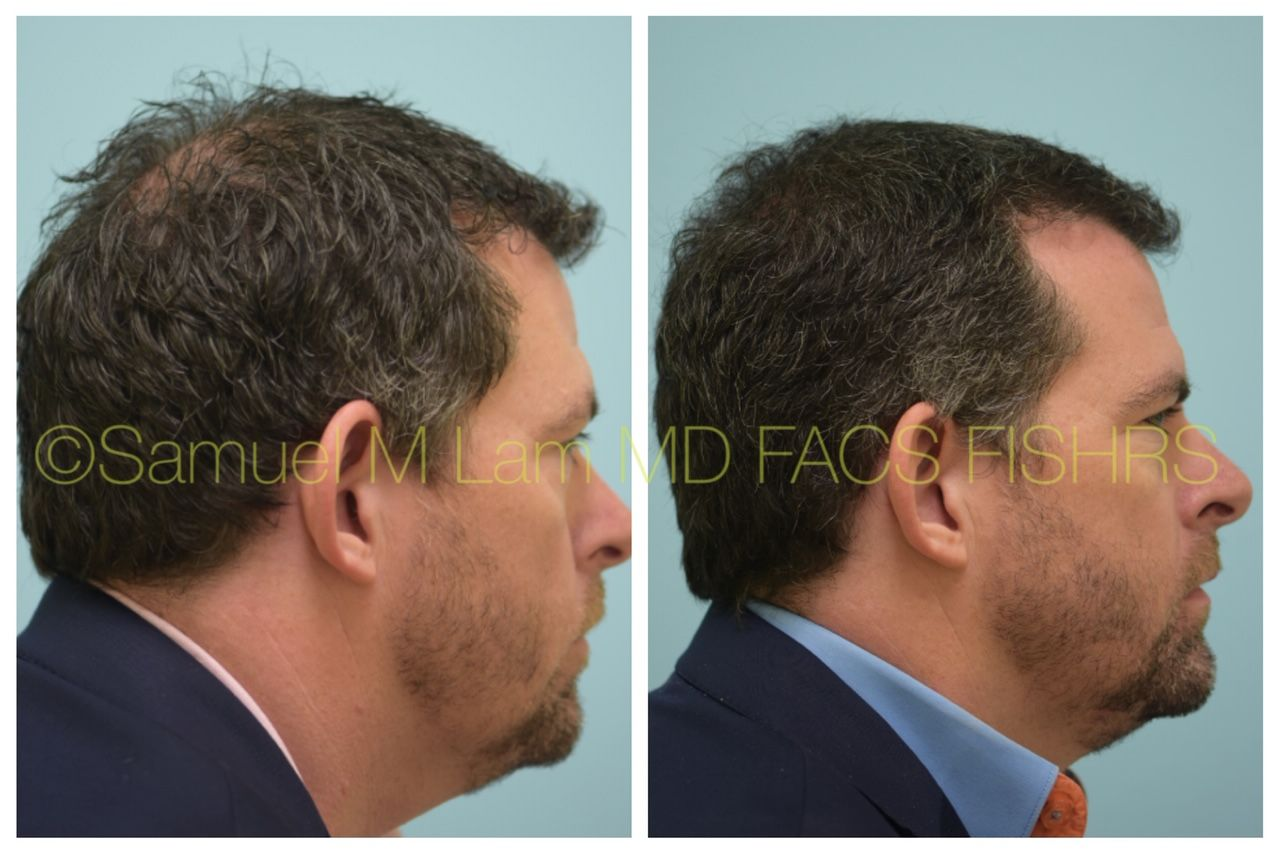 Minoxidil 6 Meses This Gentleman Is Seen Before And 5 Months After Starting 82f