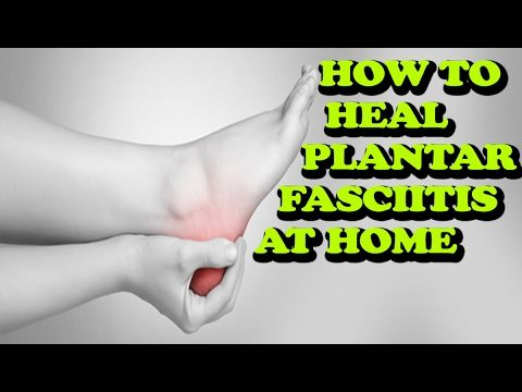 How To Heal Plantar Fasciitis At Home In 1 Week Without Surgery http://newnaturalremedies.com/PlantarFasciitis