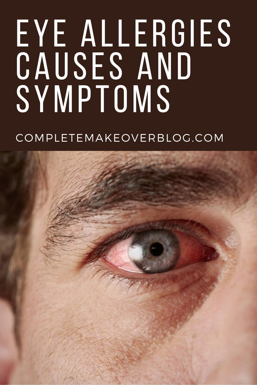 Eye Allergies Causes And Symptoms Eye Allergy Symptoms Allergy Eyes Cure For Allergies