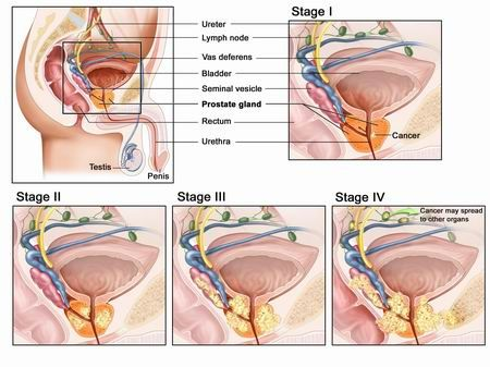 there are 4 stages of prostate cancer stage 1 means that there arethere are 4 stages of prostate cancer stage 1 means that there are no symptoms and the cancer is confined to the prostate stage 2 indicates that the