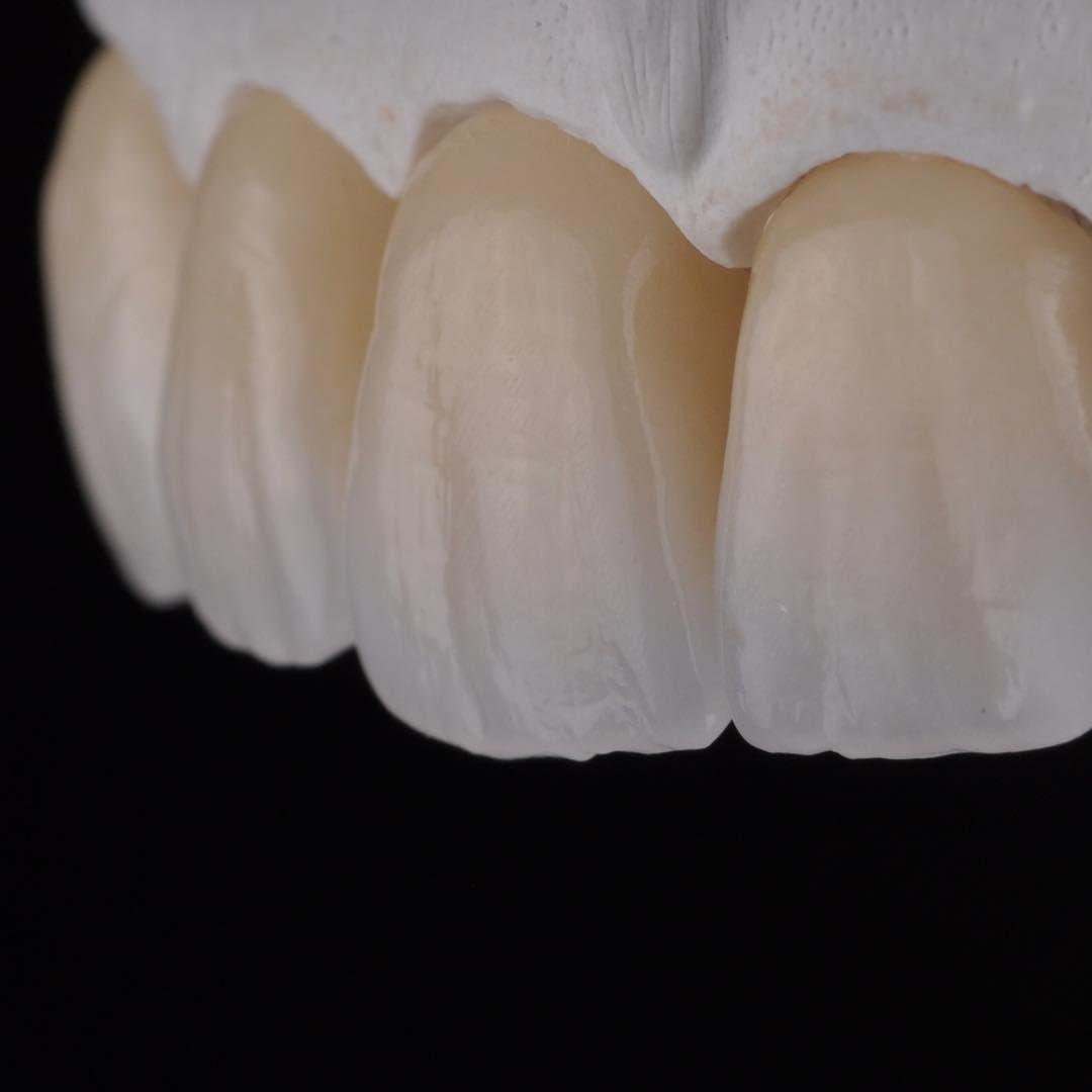 Surface Vita Dental Dental Art Dental Photos